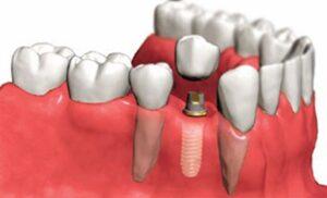 implante-dentalhh